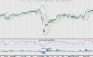 AEX in de ban van de Fed, inflatie en rente